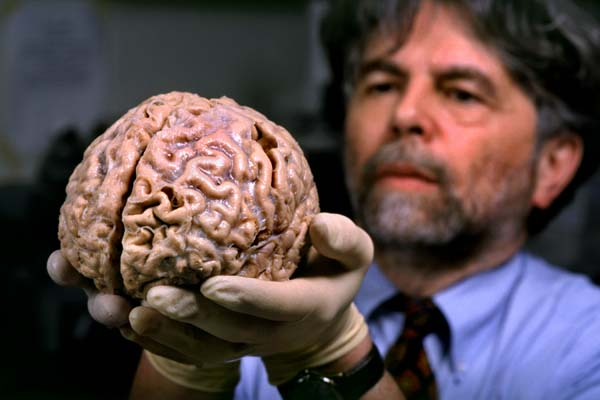 Kalil_Ron_human_brain00_2