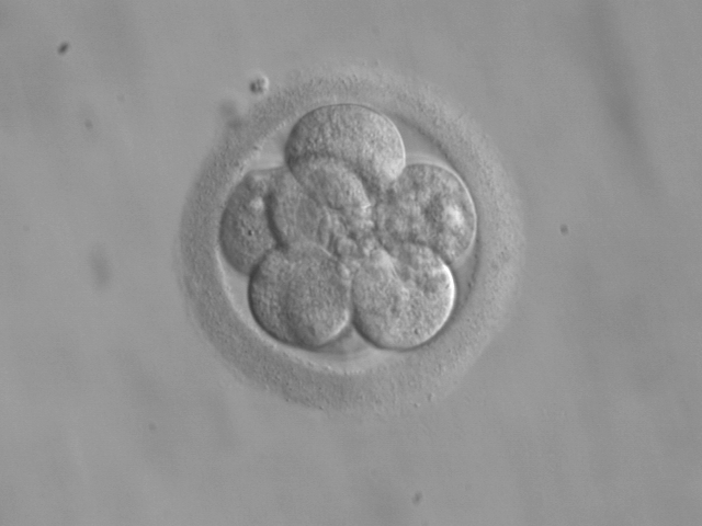 8-cell human embryo, day 3. 'The vision has been of God in travail of a beautiful offspring, God engendering a universe within himself in a painless labour…' The Enneads, V.8.12